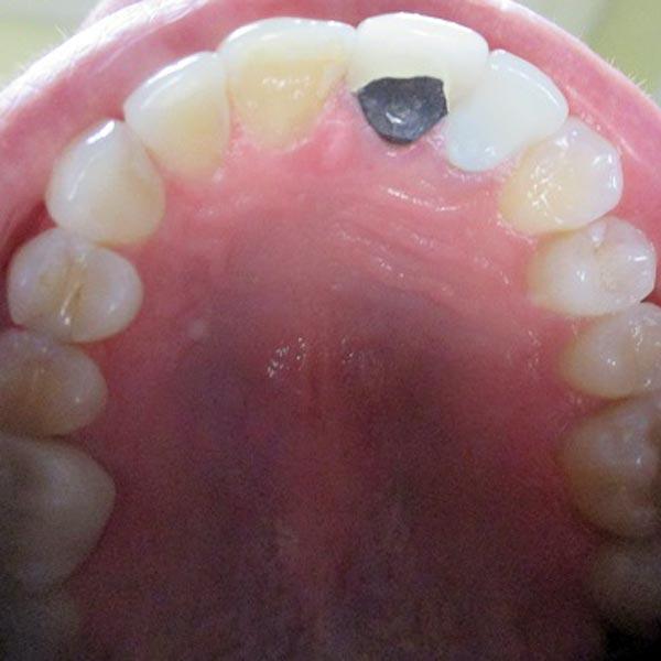 Invisalign Dentists Michigan